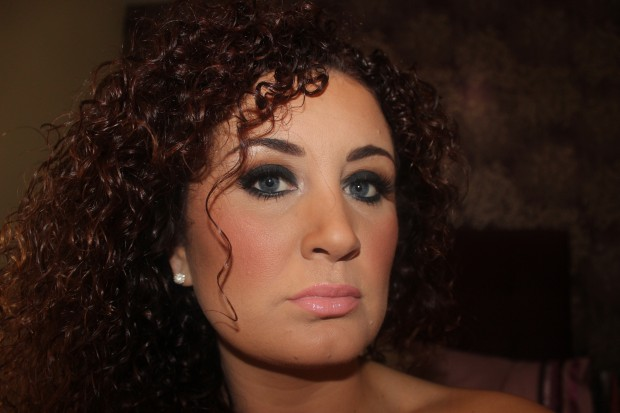 Smokey Black eye face of the day chaterbox.ie