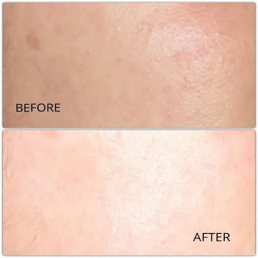 dermalogica biosurface peel before and after